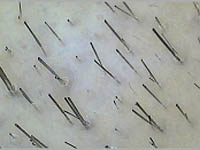 Как восстановить волосы после окраски повреждений